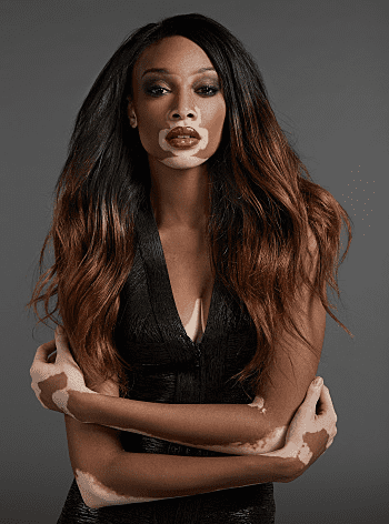 Why We Love Winnie Harlow (aka Chantelle Brown-Young ...